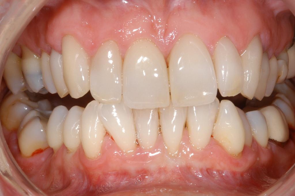 quelle matiere couronne dentaire