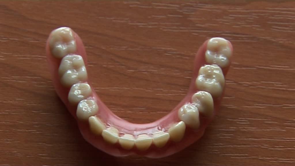 devis pour dentier complet