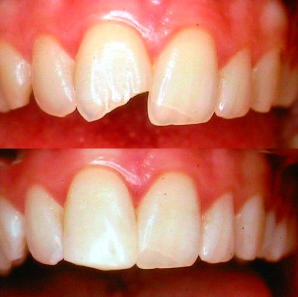 prix amalgame dentaire