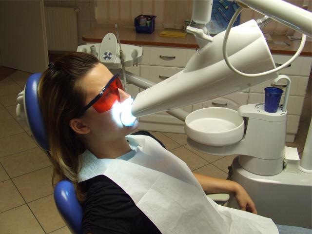 blanchiment des dents professionnel